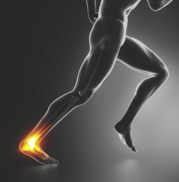 The 3 Best and Worst things You can do for Tendon trouble